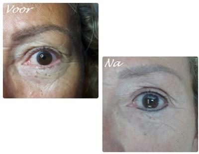 Permanente Make-Up Eye line 1 - Body & Beauty