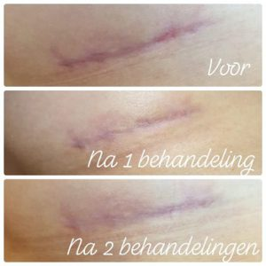 Litteken behandeling - Body & beauty